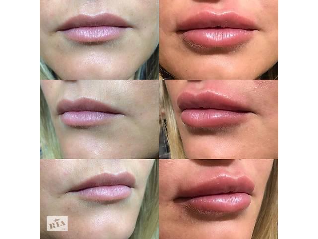 Увеличение губ,коррекция контура