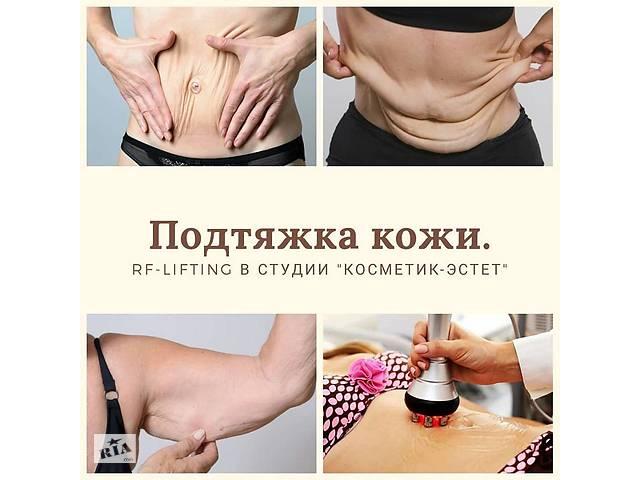 продам RF лифтинг тела. бу в Харькове